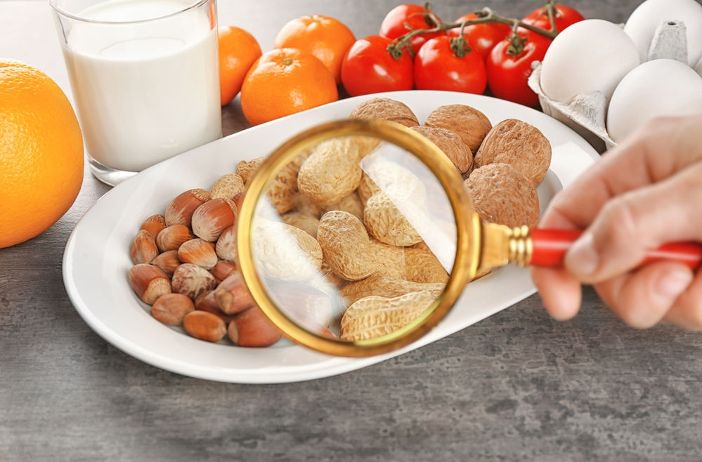 Alimentos que causan alergias o intolerancias